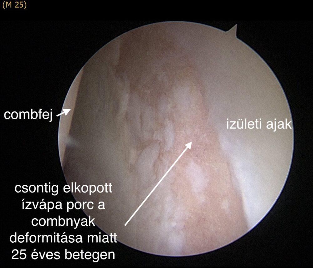 A csípőizület ütközéses szindrómája 3