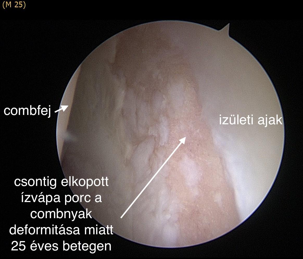 A csípőizület becsípődéses szindrómája 3