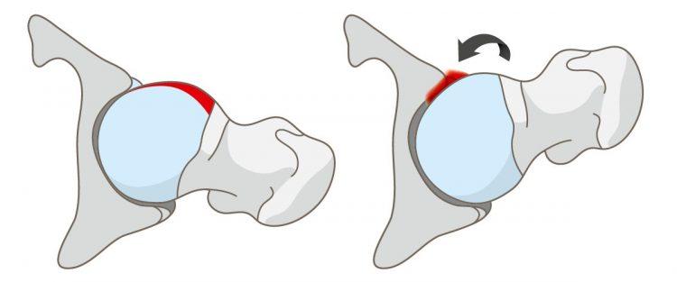 A csípőizület becsípődéses szindrómája 2