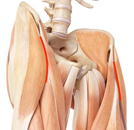 Csípőprotézis beültetés izomvágás nélkül