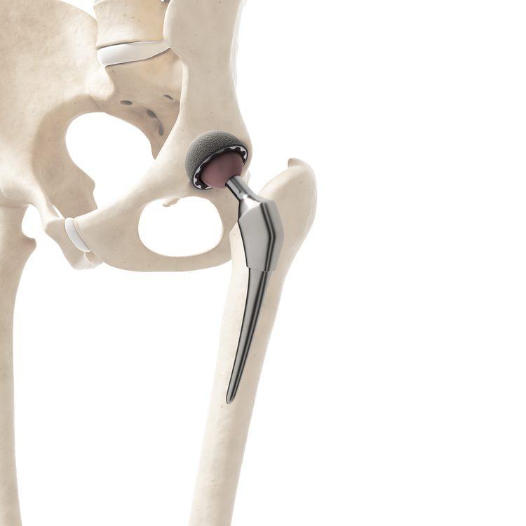 csípőprotézis beültetés izomátvágás nélkül