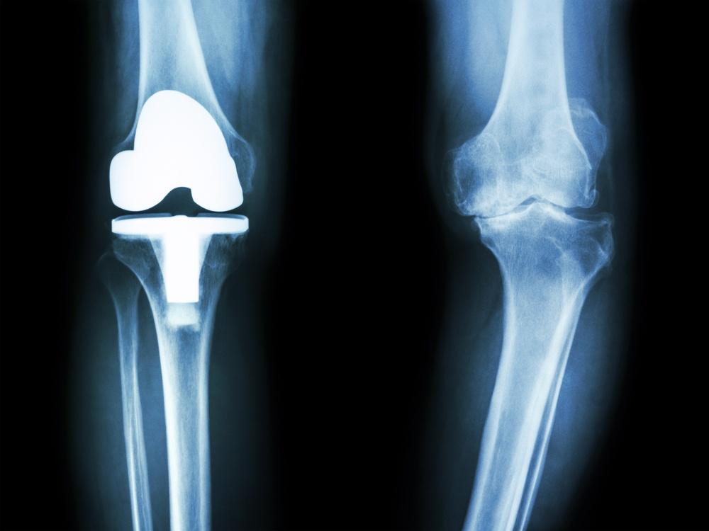 Térdprotézis műtét utáni felépülés folyamata
