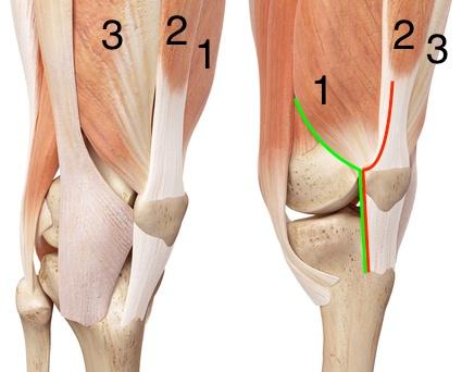 térdprotézis beültetés izomátvágás nélkül
