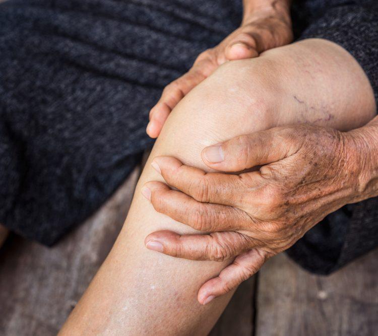 Térdizületi kopás (artrózis) 1