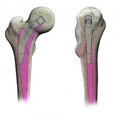 mini csípőprotézis